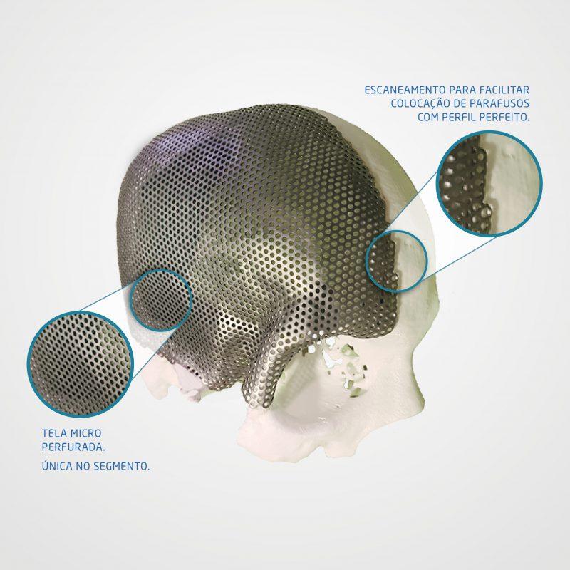 Tela para Crânio <br> CranioFlex 3D